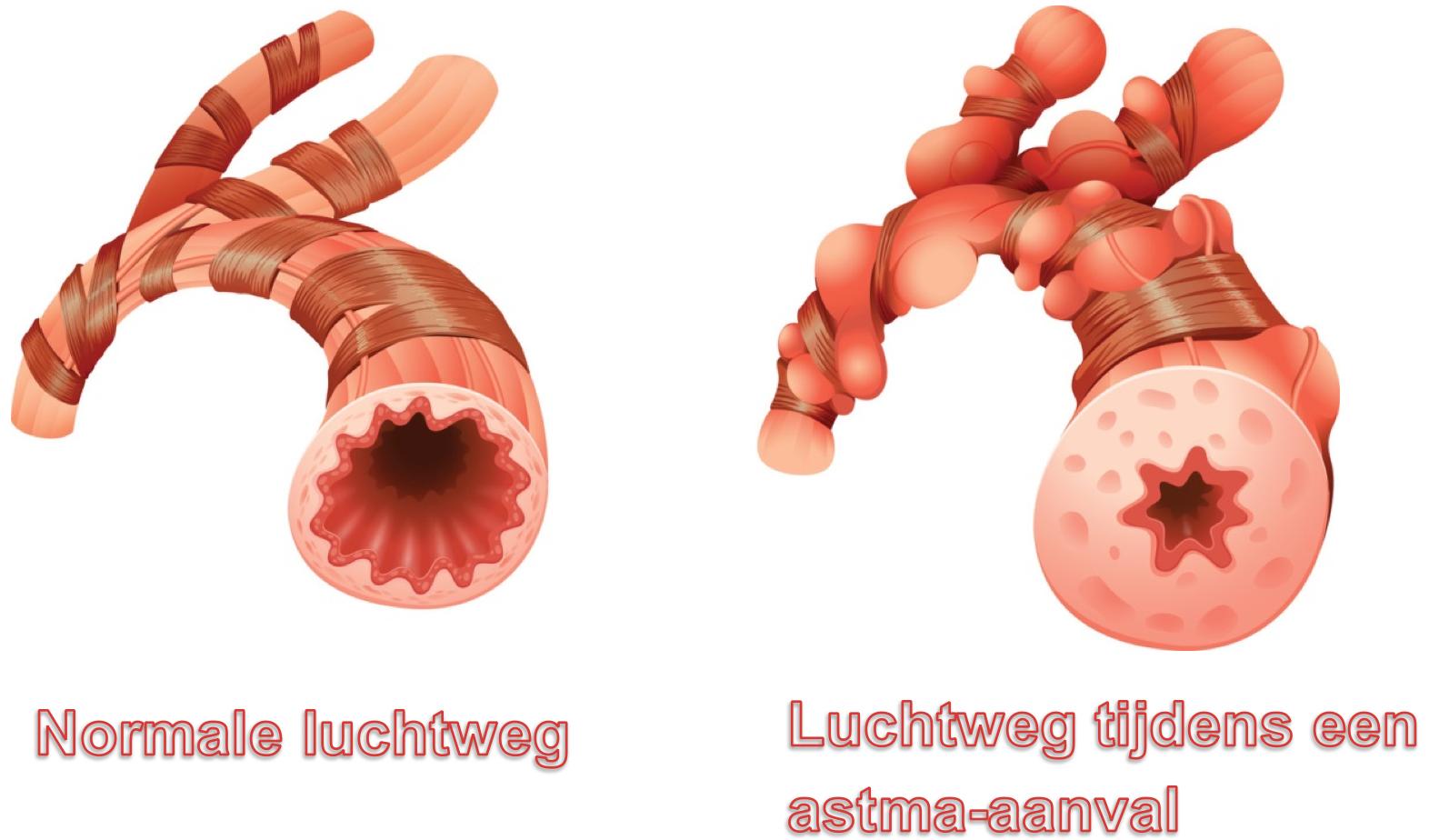 UMCG-Luchtwegen-astma-aanval